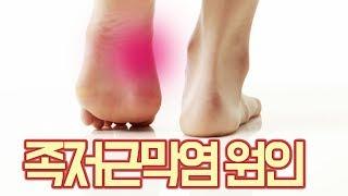 발바닥 통증이 나타나는 족저근막염 원인은?