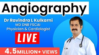 Repeat youtube video Angiography-LIVE