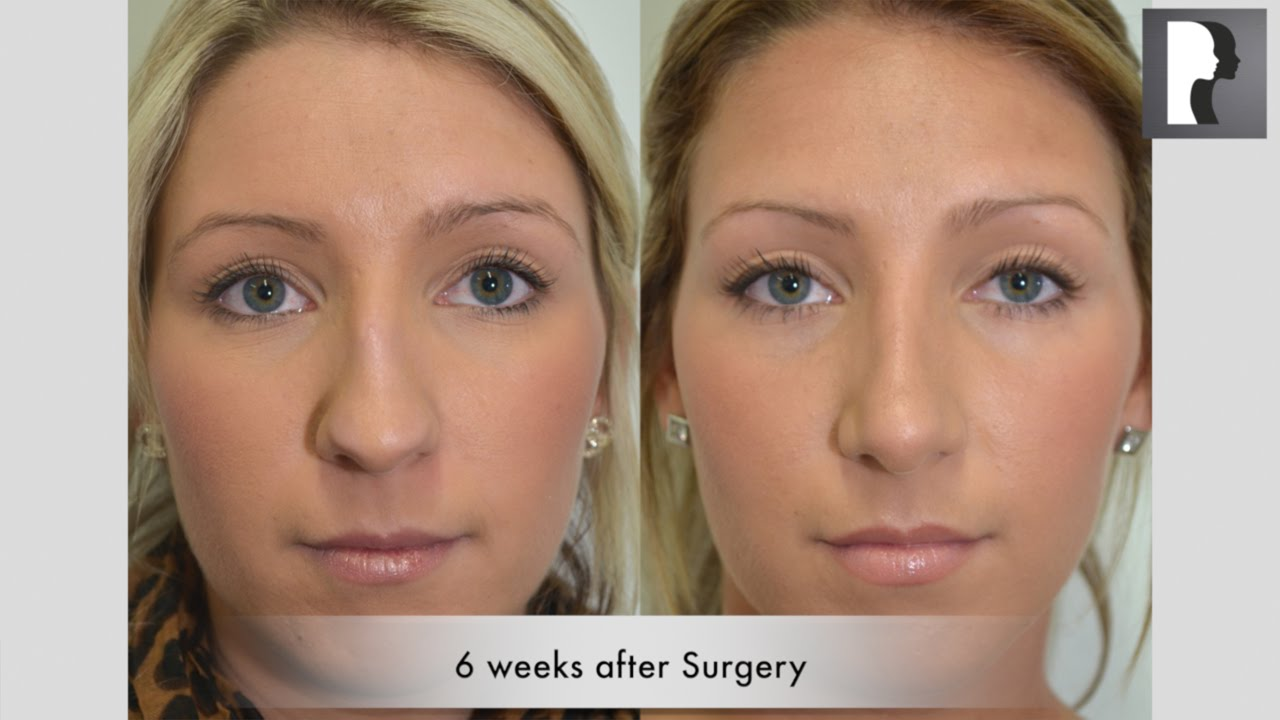 how to become plastic surgeon uk