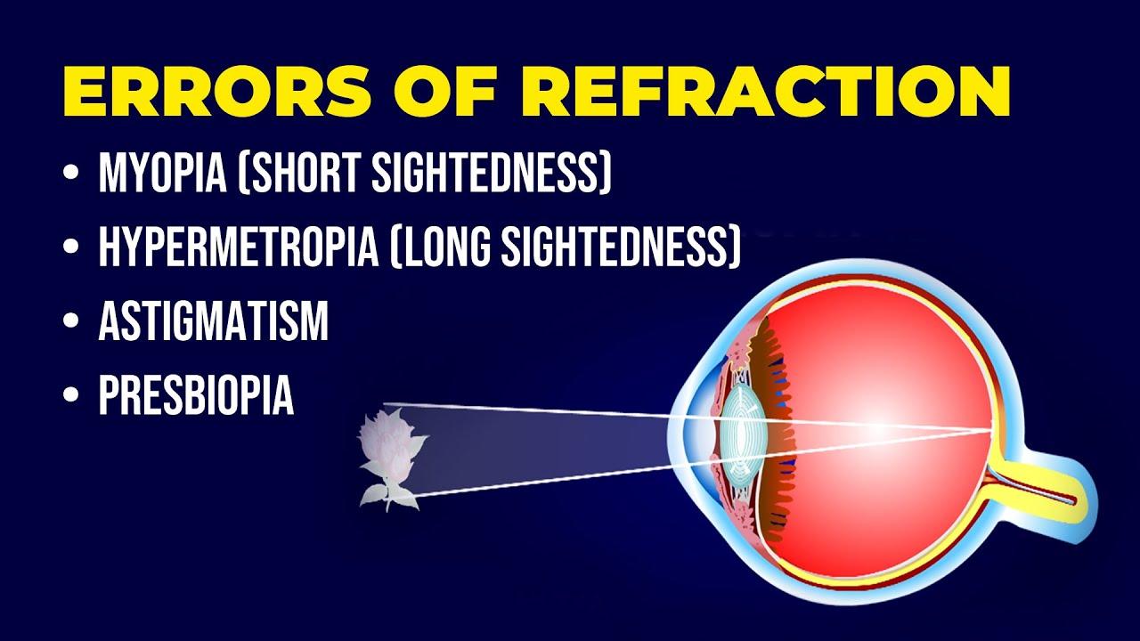 Szenilis myopia és hyperopia