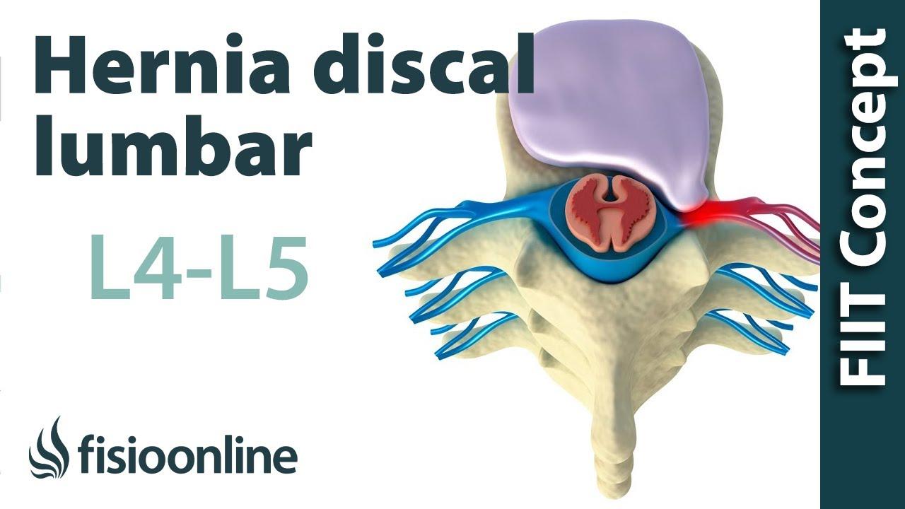 Hernia discal lumbar entre la L4 y L5 o cuarta y quinta vértebras ...