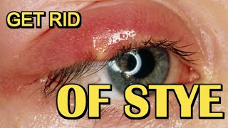 How To Get Rid Of Stye Fast | Removal At Home