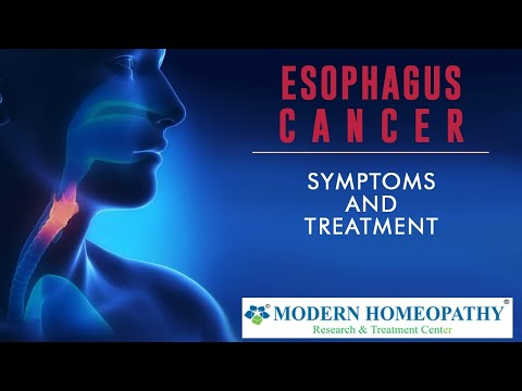 Modern Homeopathy (In English) : Esophagus Cancer curative treatment