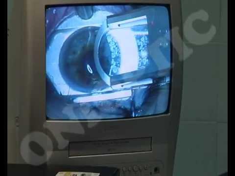 video chirurgie hipermetropie