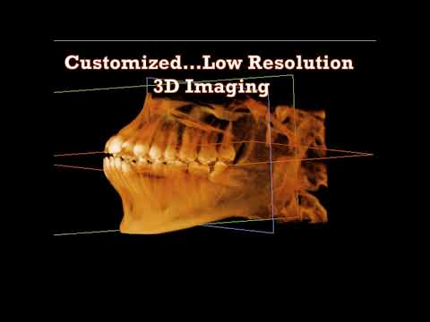 Dental Treatment: Why Cone Beams Are Essential to General Dentistry Jan 30, 2018