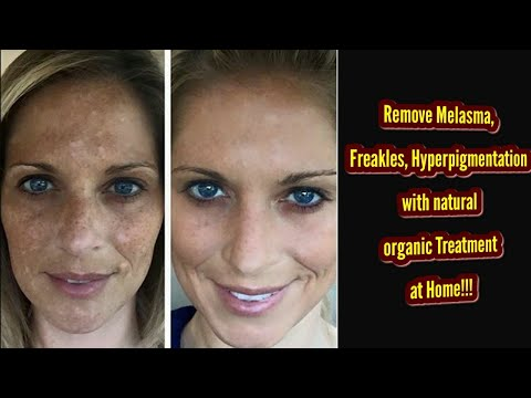 Best Effective Home Remedies For Melasma & Dark Spots On Face|Jhaiya|Sandhy's beauty hub