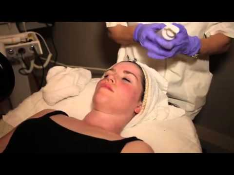 Rena Levi Skin Care Acne Video