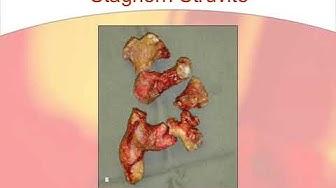 Struvite Staghorn Calculi