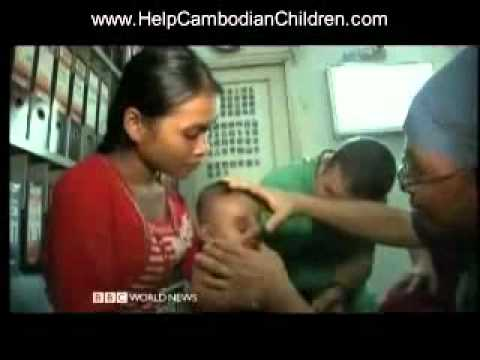 Cambodian Children Give the Gift of Surgery Part 3