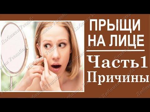 Проблемная кожа. Кожные болезни