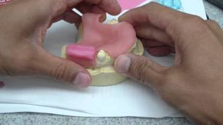 immediate denture rpd jaw relationship record fabrication