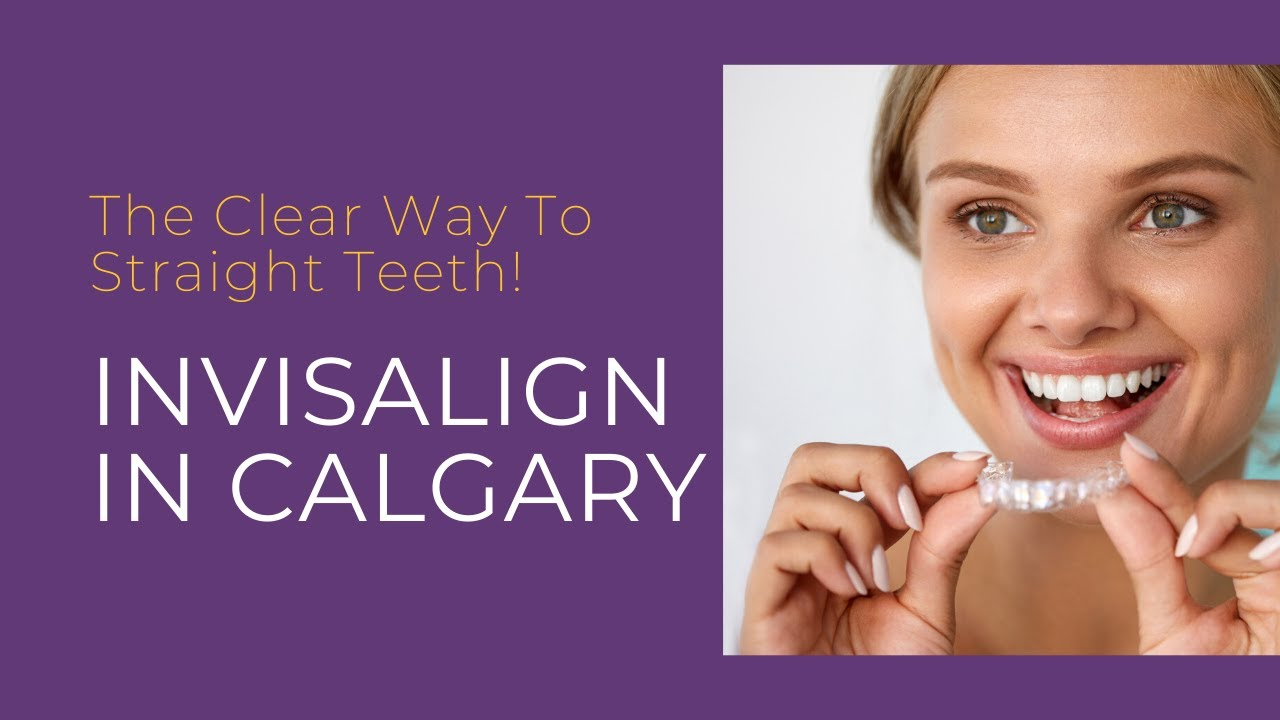Are You Thinking About Invisalign In Calgary?
