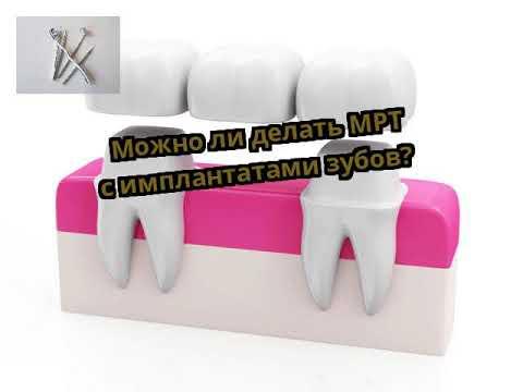 Можно ли делать МРТ с имплантатами зубов?