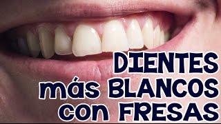 Cómo blanquear los dientes con fresas en minutos   INNATIA.COM