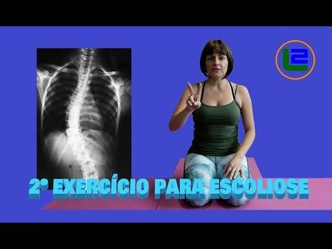 # Exercícios de Pilates para Escoliose - Parte 2