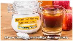 Baking Soda For Kidney Stones