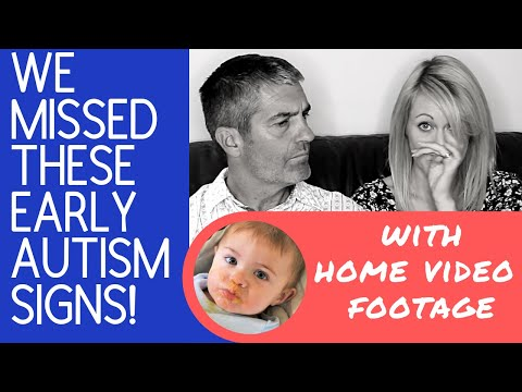 Very Early Autism Signs In Our Baby (5 to 12 months)