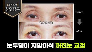 눈두덩이 지방이식 비절개눈매교정 꺼진눈교정