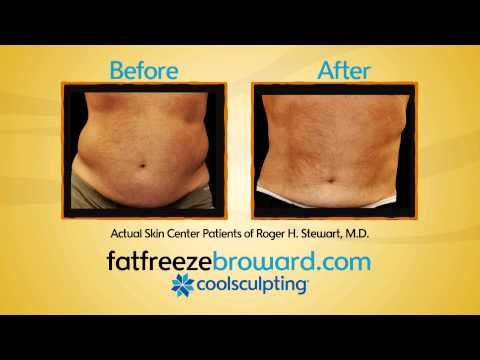 CoolSculpting - Skin Center - Roger H. Stewart, MD - Fort Lauderdale, FL - www.FatFreezeBroward.com