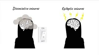 The CODES trial for dissociative seizures