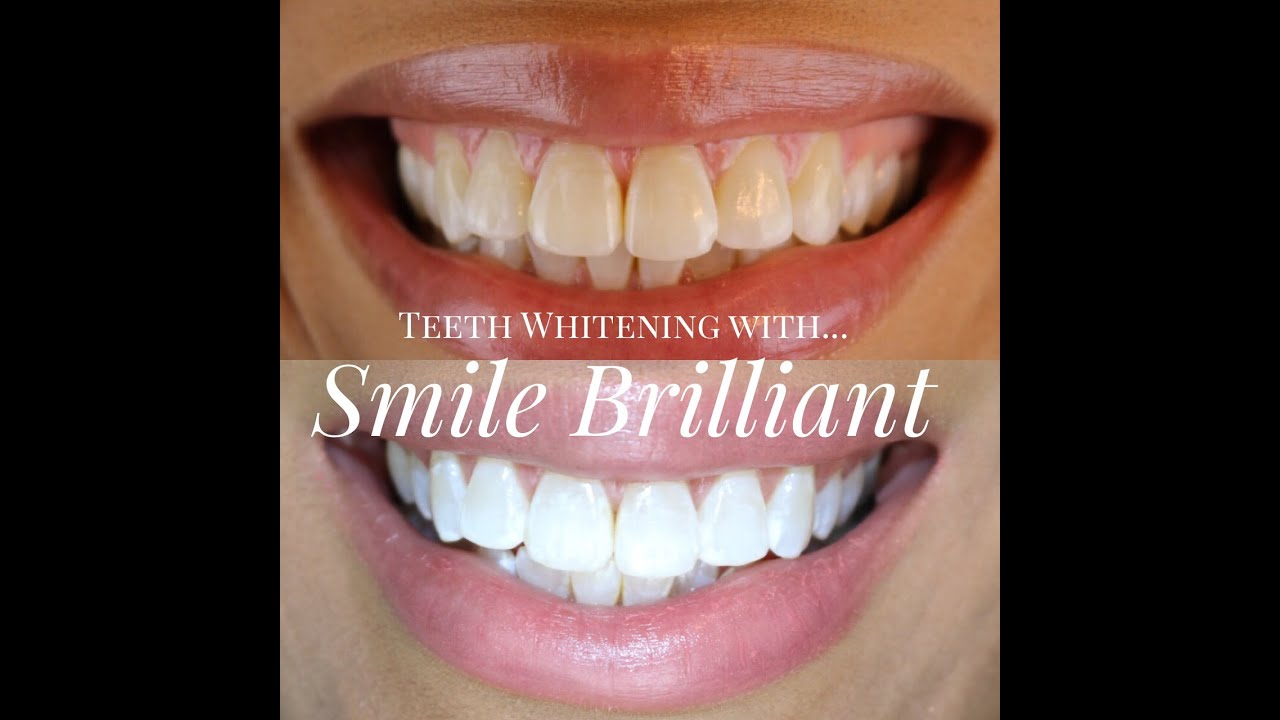 Teeth Whitening With Smile Brilliant Tia Kirby Youtube