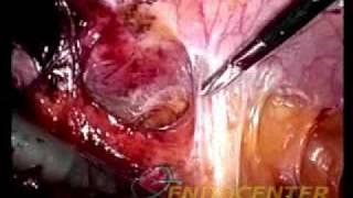 Коррекция пищеводно-желудочного перехода