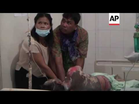 GRAPHIC Volcano victims brought to hospital