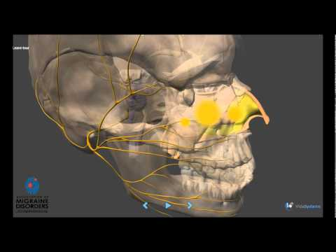 Migraine Pathophysiology - In depth