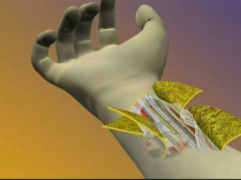 Hand Transplant Surgical Procedure Animation