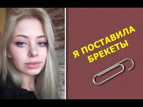 Я ПОСТАВИЛА БРЕКЕТЫ! / ОБ УДАЛЕНИИ ЗУБА МУДРОСТИ