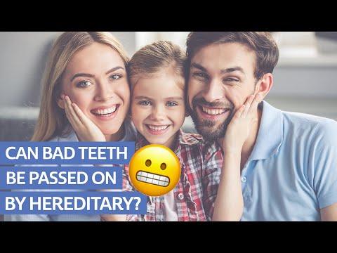 Are Bad Teeth Hereditary?