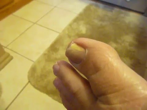 CURE FOOT and Toenail Fungus Using Hydrogen Peroxide Soaks - YouTube