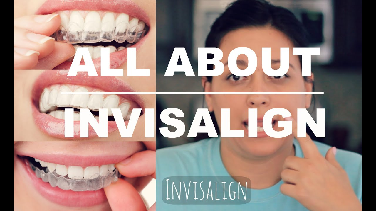 Invisalign Review How It Works And What To Expect Youtube