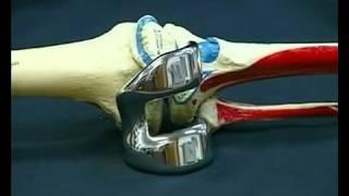 Искусственные суставы 1 |  Как это работает