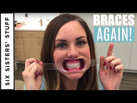 ADULT BRACES Vs. INVISALIGN - My Orthodontist Consultation