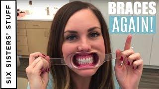 ADULT BRACES vs. INVISALIGN - My Orthodontist Consultation