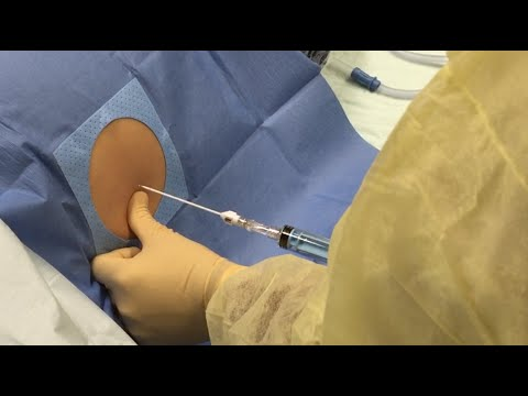 4 Buckets  of fluid removed from abdomen
