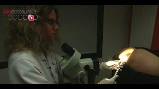 Condylomes : dépister et traiter les lésions précancéreuses - Le Magazine de la santé