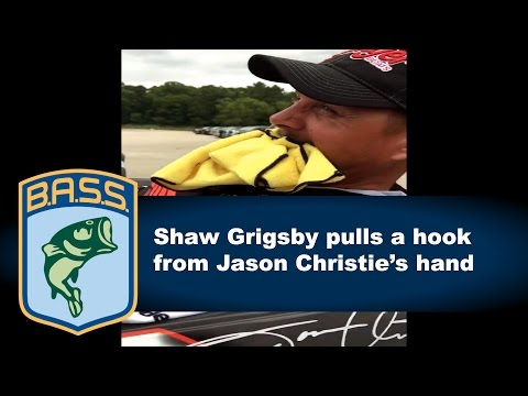 Shaw Grigsby removes hook from Jason Christie's hand