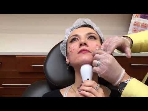 Acne Scars Bellafill Injection - Dr. Valaie, MD - Newport Beach, Orange County, CA