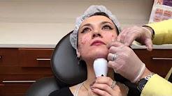 hqdefault - Acne Scar Treatment Orange County Ca