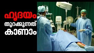 Open Heart Surgery Video Medical Exhibition