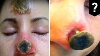 เคราะห์ร้าย จมูกหลุดเป็นรูโบ๋ ใช้วิธีรักษามะเร็งแบบธรรมชาติ
