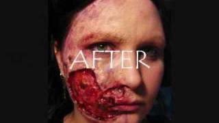 Transformation- Flesh Eating Disease