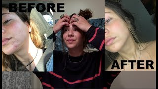 HOW I GOT RID OF MY ACNE IN ONLY 3 DAYS (not clickbait)