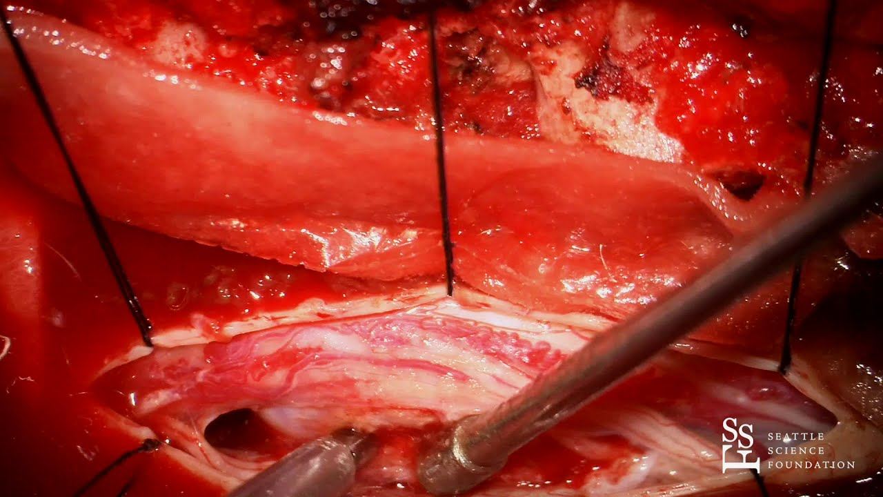 Download Live Surgery: Resection of Spinal Tumor - Rod J. Oskouian, M.D.