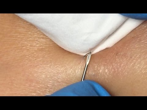 Ingrown Hairs Extraction - 16 minutes