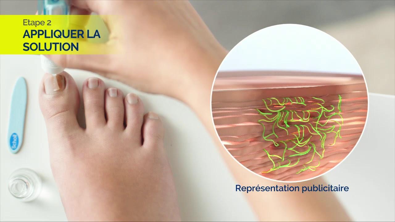 Mycose Des Ongles De Pied Symptômes Et Traitements