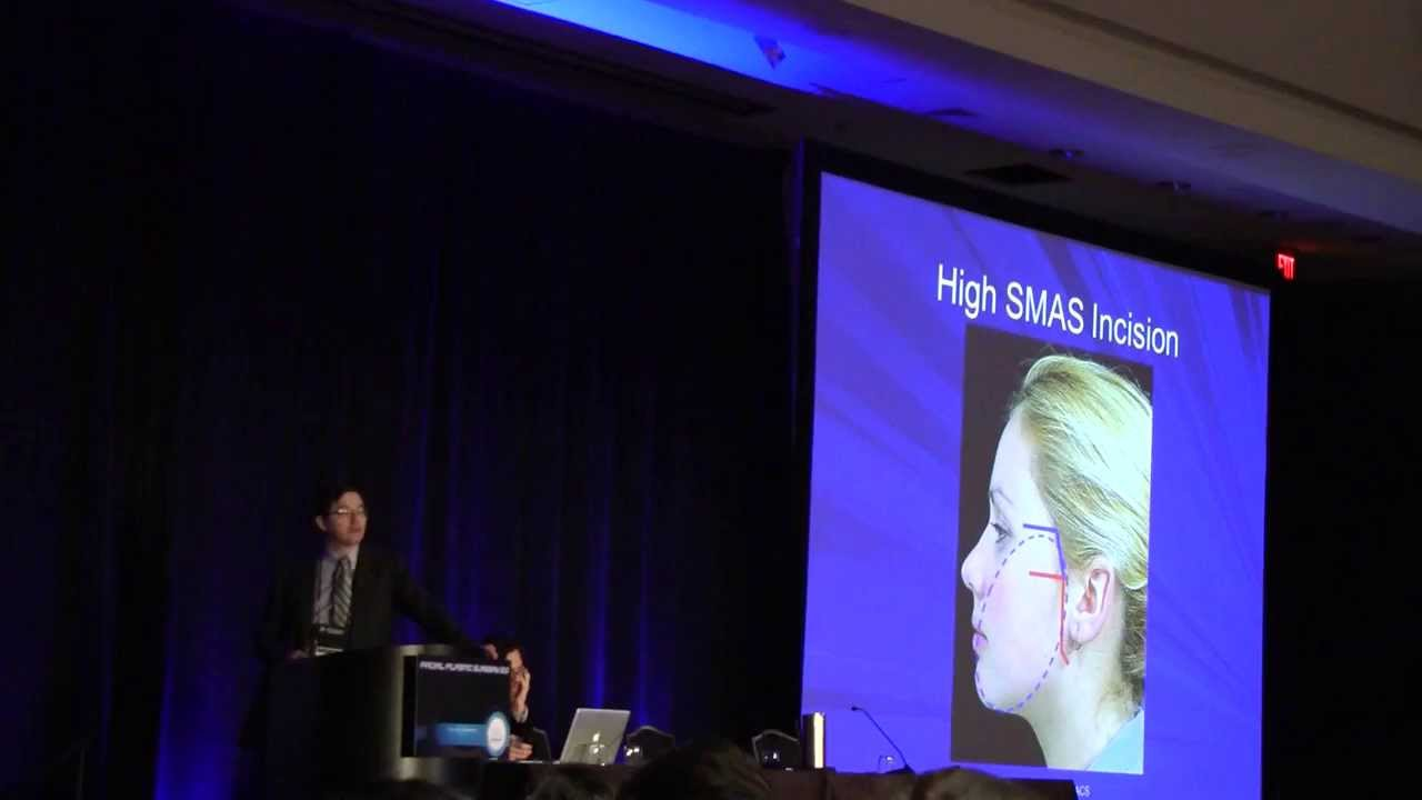 The High Smas Facelift -Pittsburgh Facial Plastic Surgeon ...