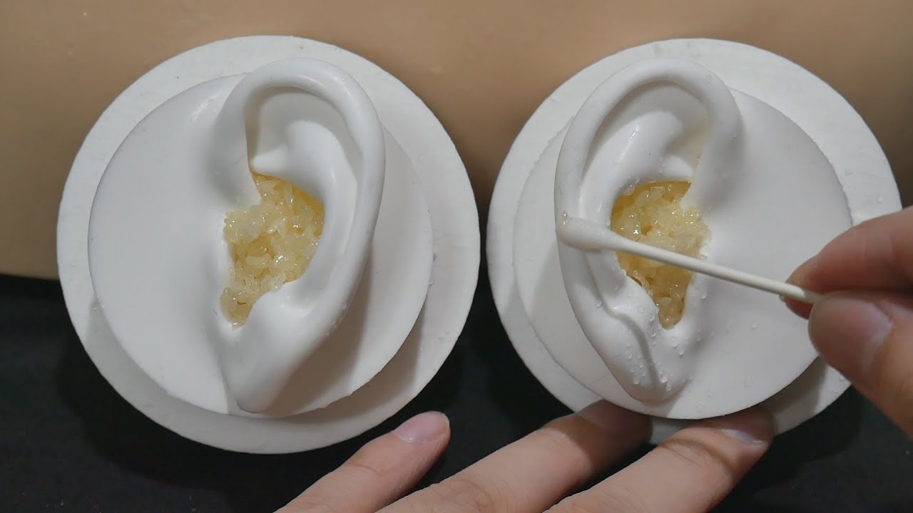 ASMR Your ears are full of earwax 7 - Pop Rocks / Popping ...